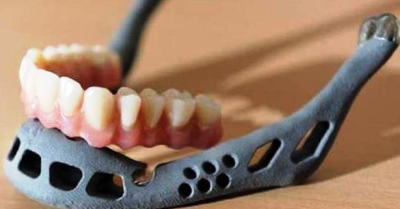 Первая 3D челюсть для ребенка