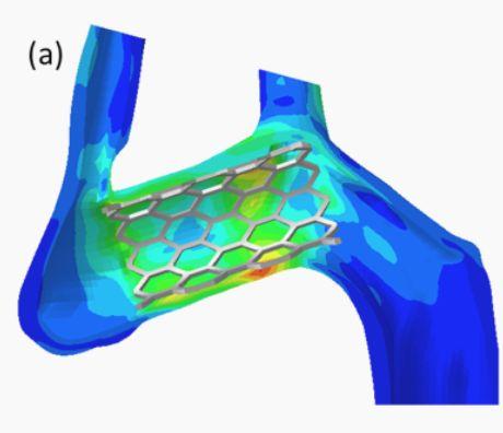 Нитиноловые 3Д стенты