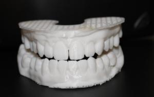 Изготовление печати зубных оттисков по сканированной модели.
