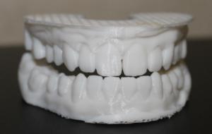 3Д модель зубного протеза, качественная 3Д печать
