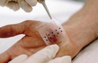 3Д повязка для ран