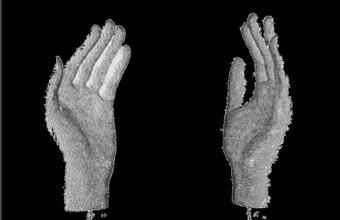 Доступный 3Д протез
