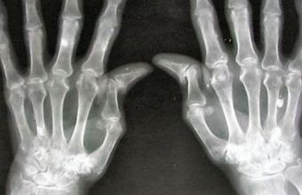 3Д ткани для лечения артрита