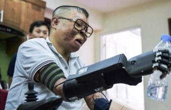 3Д бионическая рука