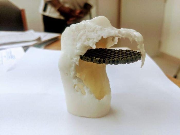 3Д имплант для колена